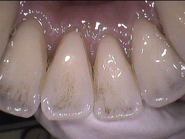 歯ぐきに傷が!