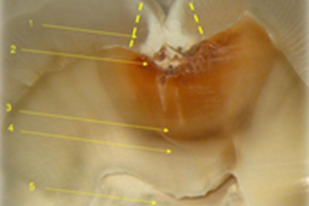 奥歯の虫歯