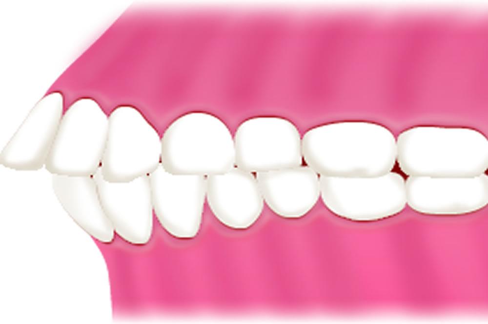 軽度の出っ歯