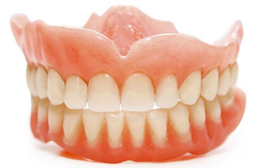 仮歯やリハビリ義歯