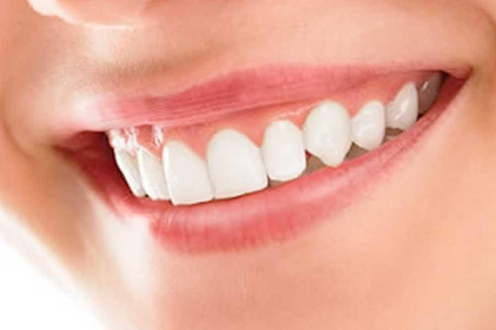 歯茎の黒ずみ除去