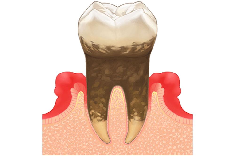 智歯周囲炎の可能性