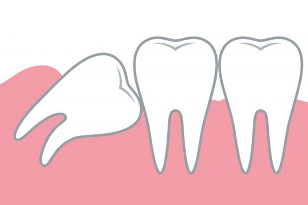 歯並び・咬み合わせのトラブル
